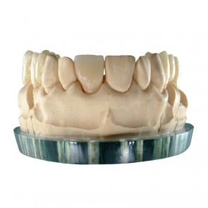 Composite-Disc Pressing Dental Smile-Cam Multicolor-micro-filled