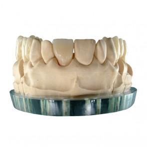 Composite-Disc Pressing Dental Smile-Cam Multicolor-micro-filled