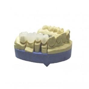 Composite-Disc Pressing Dental Smile-Cam disc PMMA-micro-filled-20 mm enamel 100% / 50%