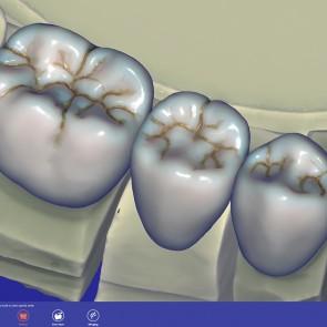 ExoCad Tooth Library ZRS Wiedmann modul